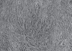 vedere-plana-membrana-t-gen